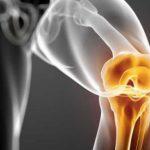 Цементный или бесцементный протез тазобедренного сустава?