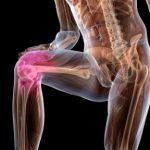 Деформирующий артроз крупных суставов: симптомы и лечение