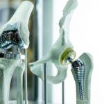 Оборудование операционного блока: эндопротезы Aesculap