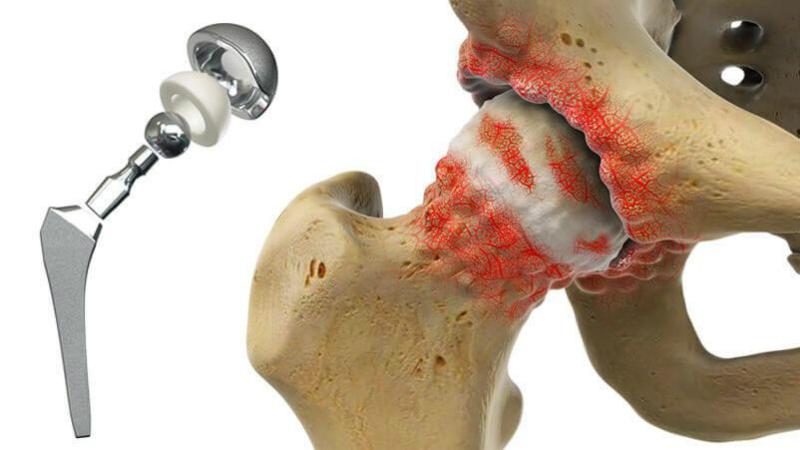 повторное эндопротезирование тазобедренного сустава